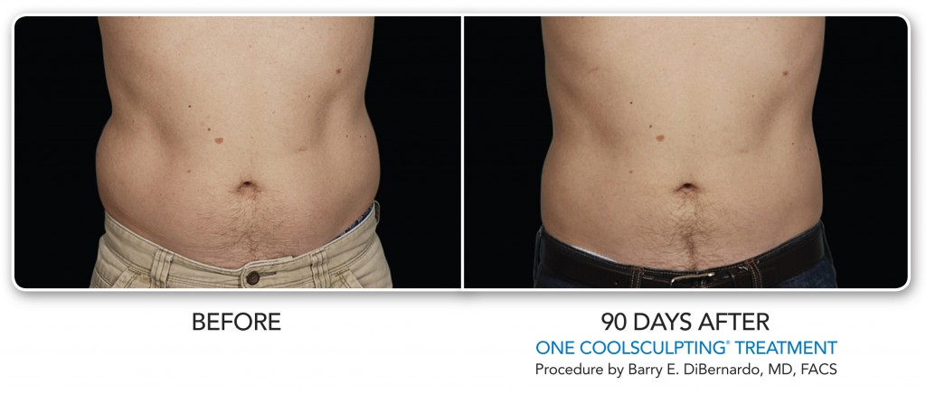 CoolSculpting BA-Male-LoveHandle-001