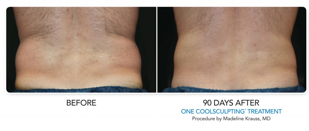 Coolsculpting BA-Male-LoveHandle-003